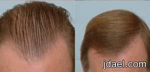 علاج الصلع وتساقط الشعر لدى الرجال بتجارب مجربه ولها نتائج