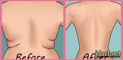 نصائح مهمة للتخلص تراكم الدهون منطقة الظهر