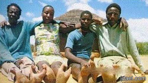 اغرب الصور لارجل الانسان افريقيا ارجل مثل ارجل النعام لقبائل