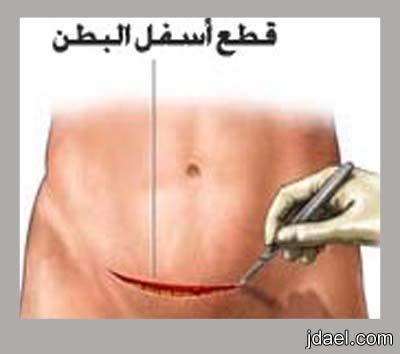 اسباب استئصال الرحم وانواع عمليات ازالة الرحم بالصور