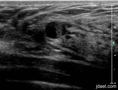 اعراض واسباب تكيسات الثدي وطرق العلاج