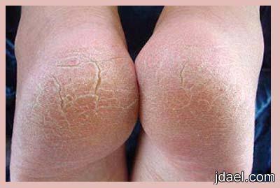علاج تشقق وازالة الجلد الميت والتخلص جفاف القدمين