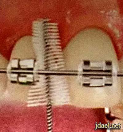 العناية الصحية بعد تركيب تقويم الاسنان البيت نصائح طبية