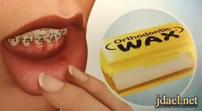 العناية الصحية بعد تركيب تقويم الاسنان في البيت نصائح طبية
