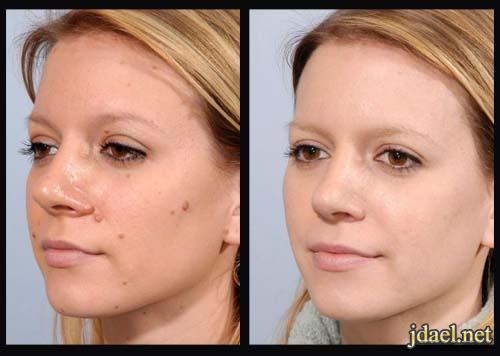 التخلص شامات الوجه بمواد طبيعيه وحلول جذريه ونتائج فعاله